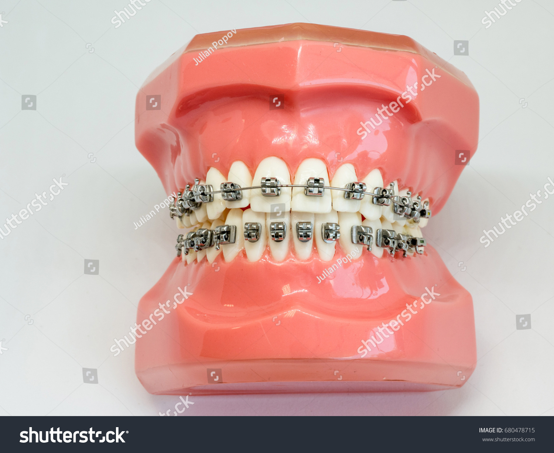 Human Jaw Teeth Orthodontic Dental Model Stock Photo (Edit Now ...
