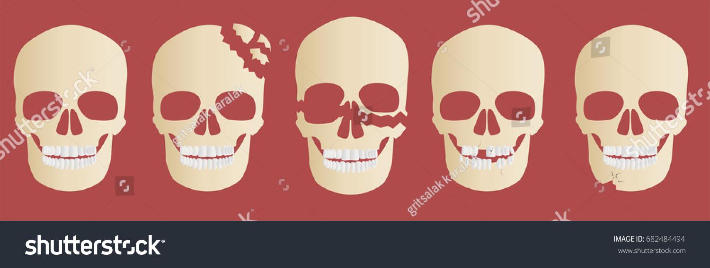 skull bone crack vector / head