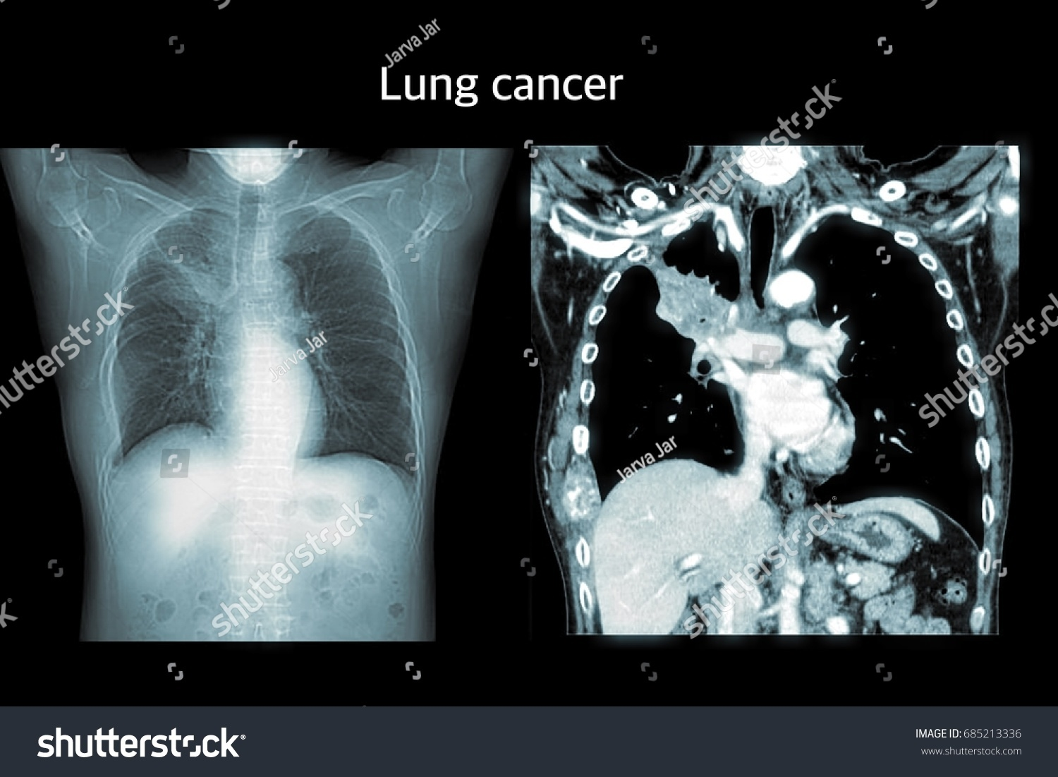 Ct Scan Chest Stock Photo Royalty Free 685213336 Shutterstock