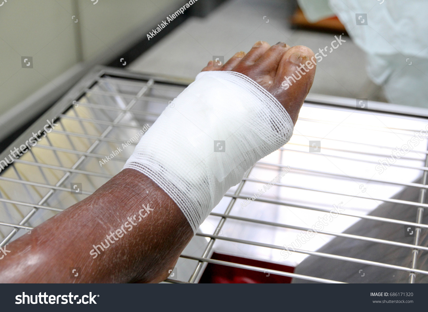 Infection Wound On Diabetic Patient Foot Stock Photo Edit Now