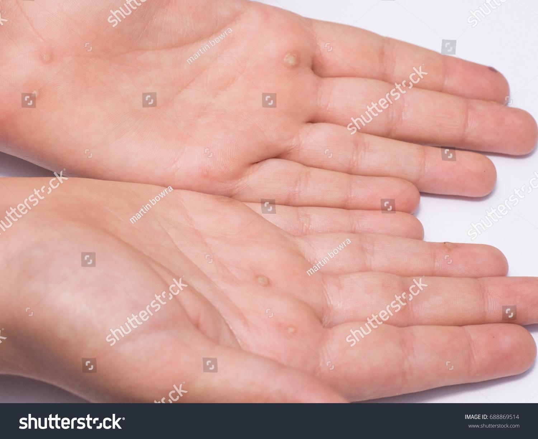 Common Wart Verruca Vulgaris Flat Wart Stock Photo Edit Now 688869514