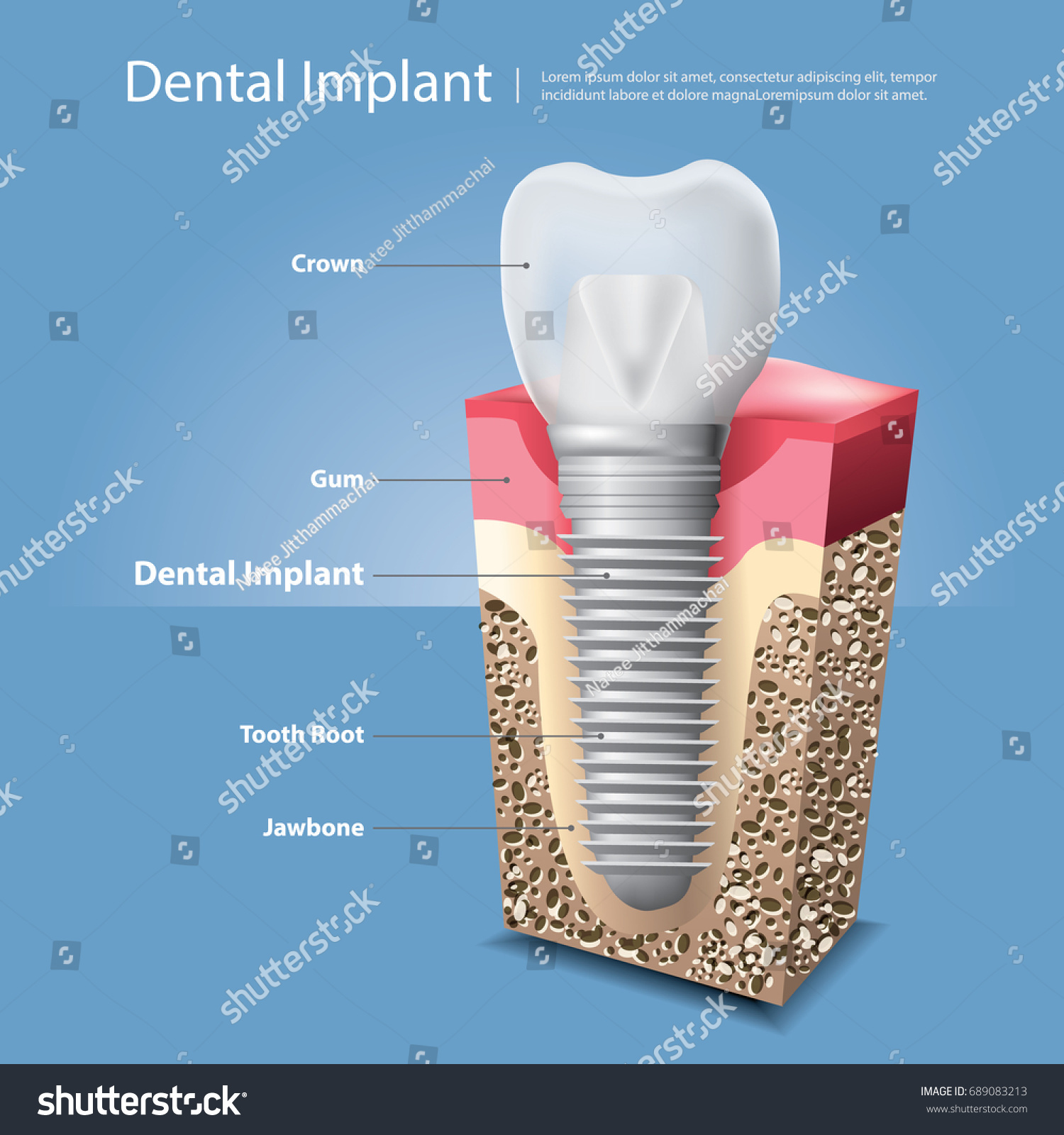 Human teeth dental implant vector illustration stock vector human teeth and dental implant vector illustration biocorpaavc Image collections