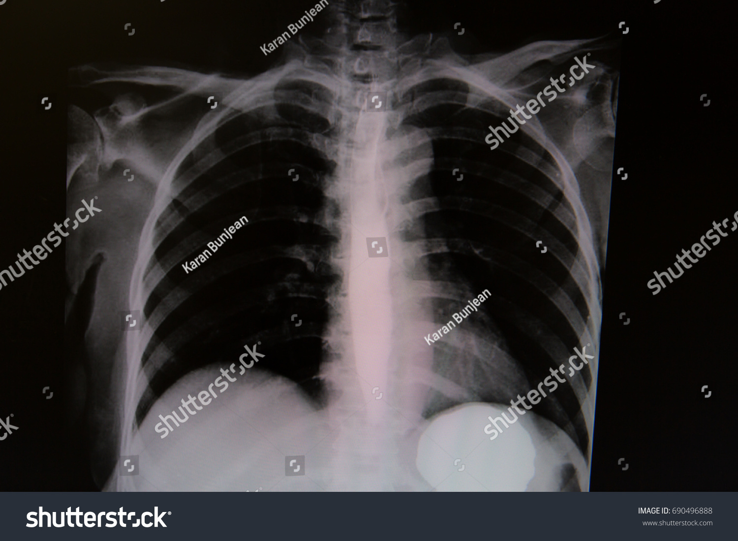 Frontal View Chest Radiography After Barium Stock Photo Royalty