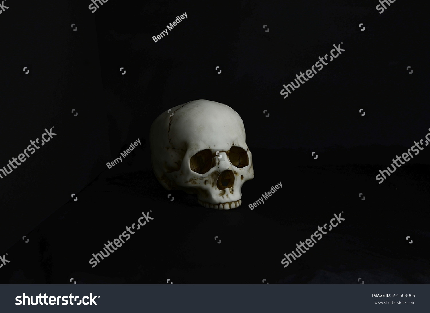 An Incomplete Human Skull Missing The Lower Jaw Bone Set Against A