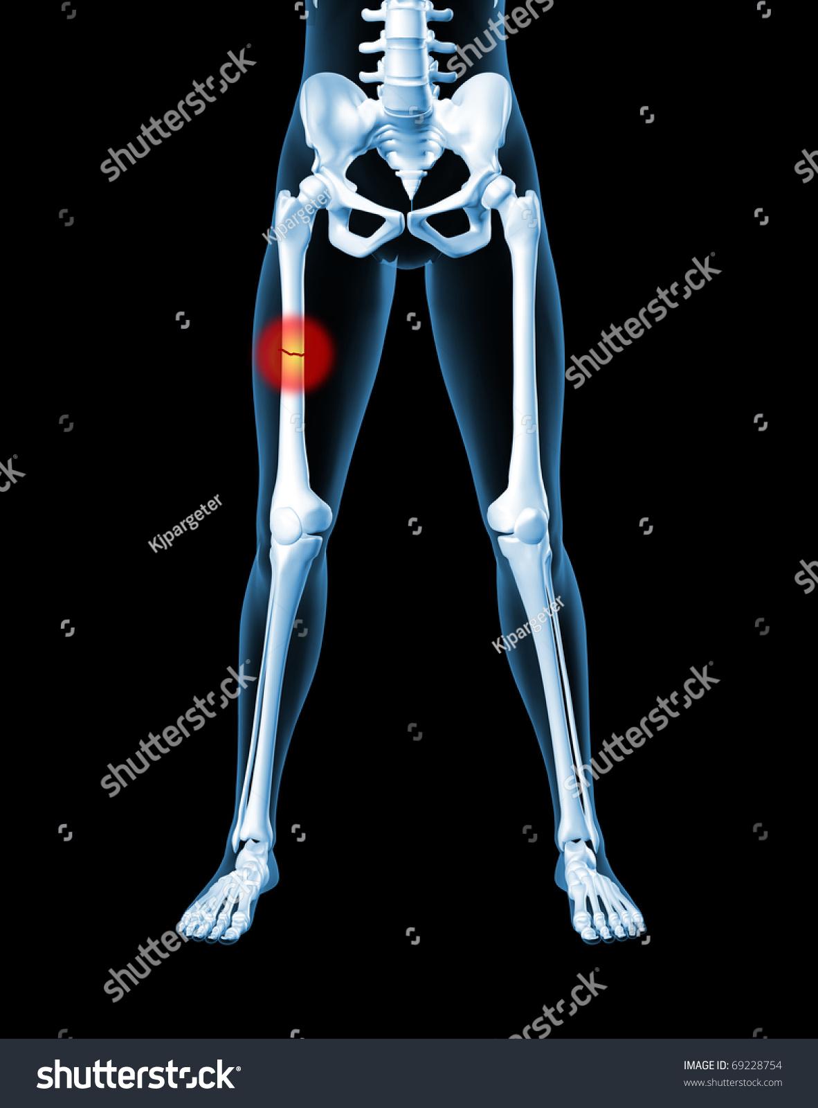 3 D Render Medical Female Skeleton Broken Stock Illustration