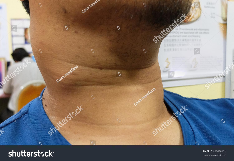 Papillary Thyroid Cancer Lymph Node Neck Stock Photo Edit Now