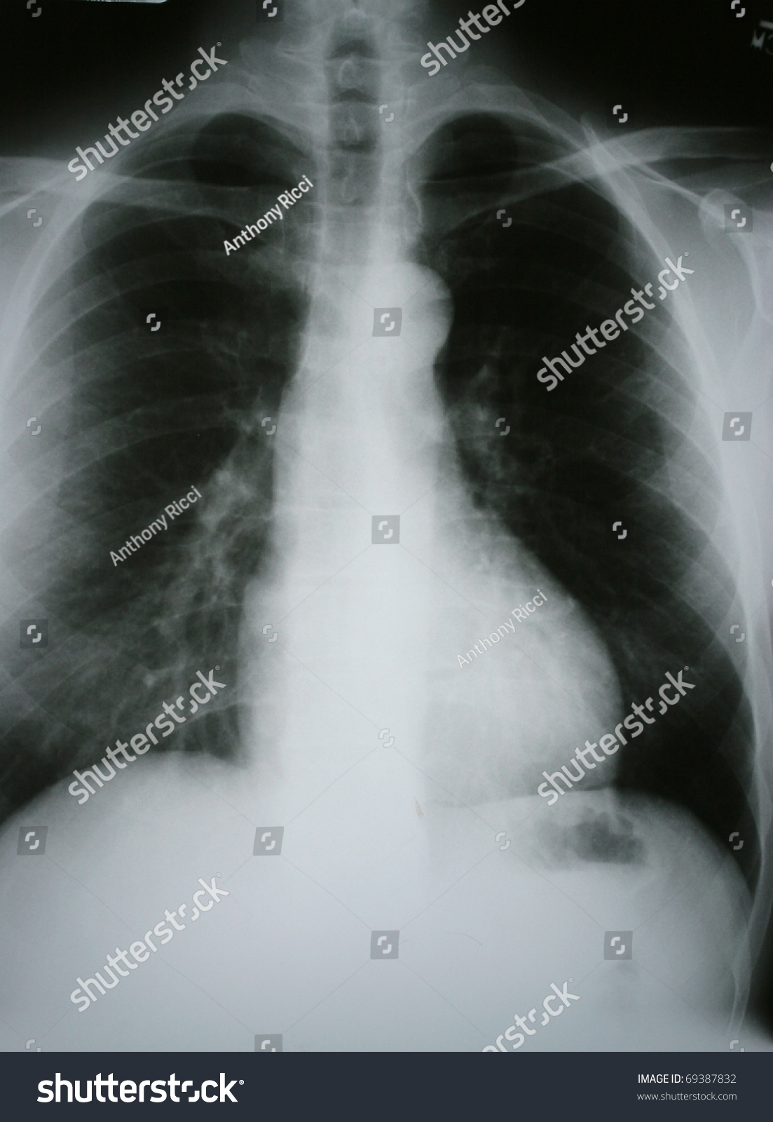 pulmonary disease or lung disease Restrictive lung disease pulmonology a general term that encompasses the functional aspects of interstitial lung disease etiology-acute infections–miliary tb, histoplasmosis, pc.
