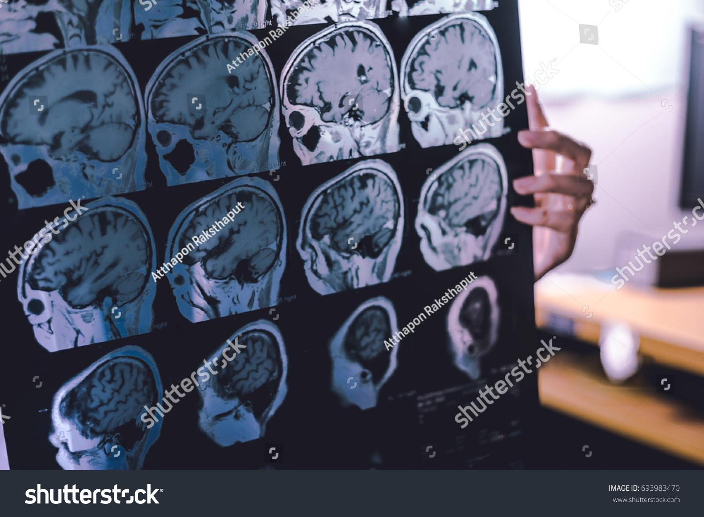 Frontal Lobe Atrophy On MRI Film Stock Photo (Edit Now) 693983470 ...