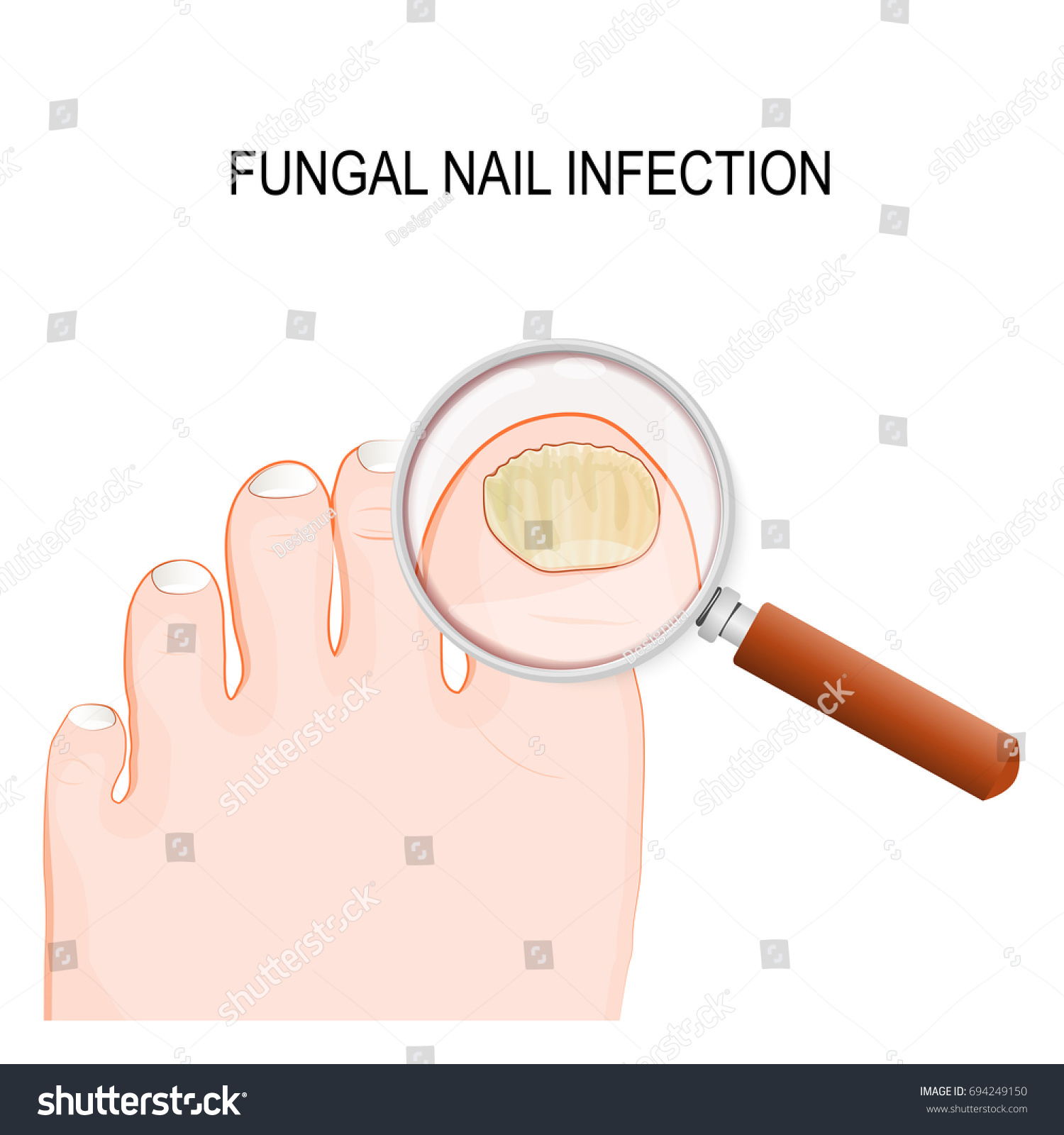Fungal Nail Infection Onychomycosis Tinea Unguium Stock