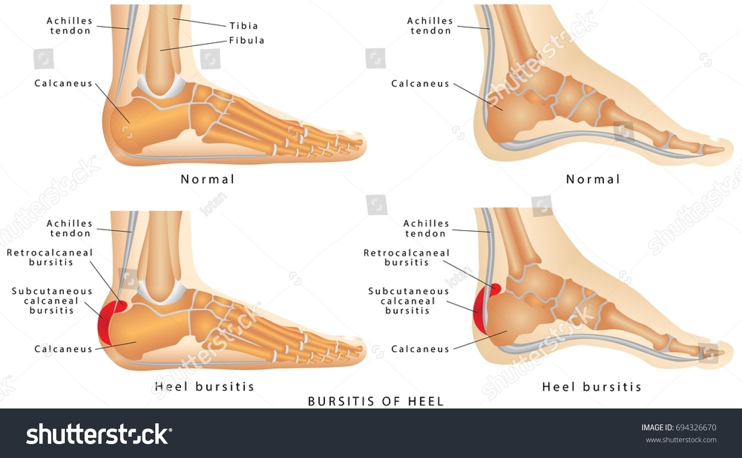 Heel Bursitis Foot Normal Heel Foot Stock Vector HD (Royalty Free ...