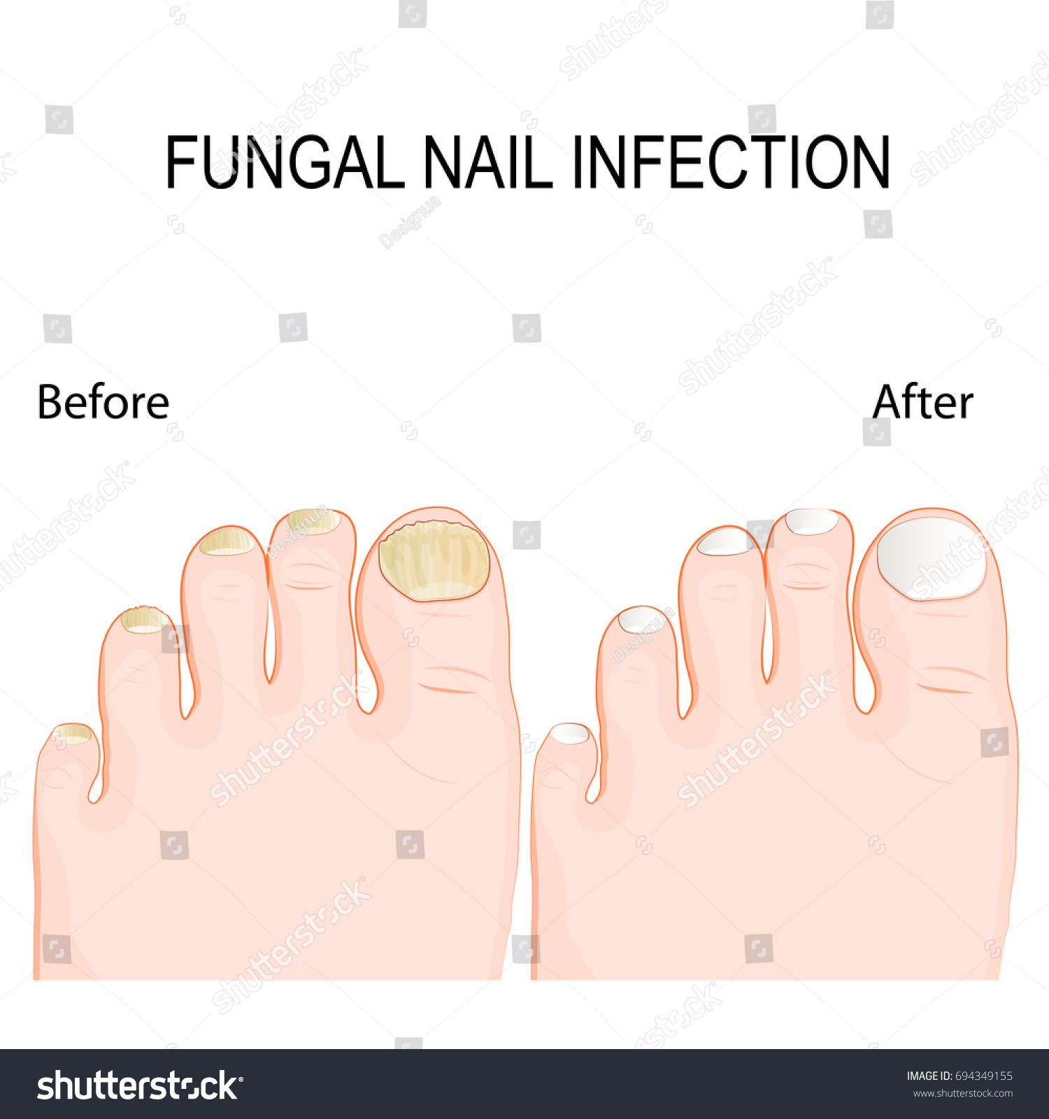 Fungal Nail Infection Onychomycosis Tinea Unguium Stock Photo (Photo ...