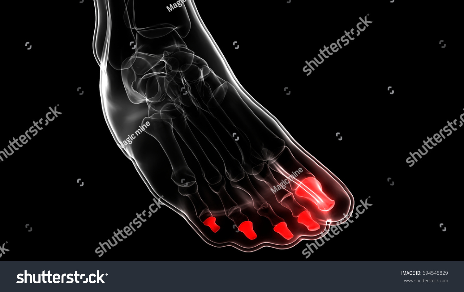 Human Skeleton Foot Joints Anatomy Distal Stock Illustration ...