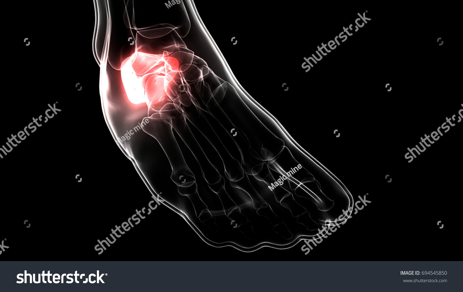 Human Skeleton Foot Joints Anatomy Calcaneus Stock Illustration ...