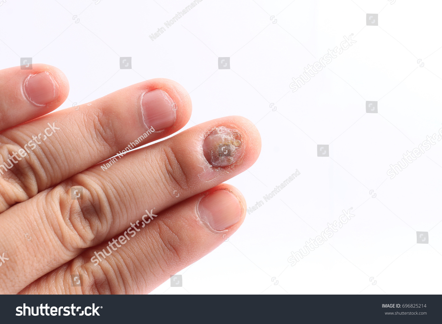 Fungus Infection On Nails Hand Finger Stock Photo (Royalty Free ...