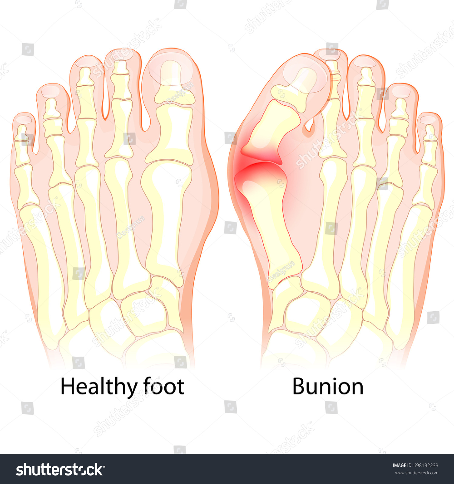 Healthy Foot Foot Bunion Human Anatomy Stock Vector 698132233 ...