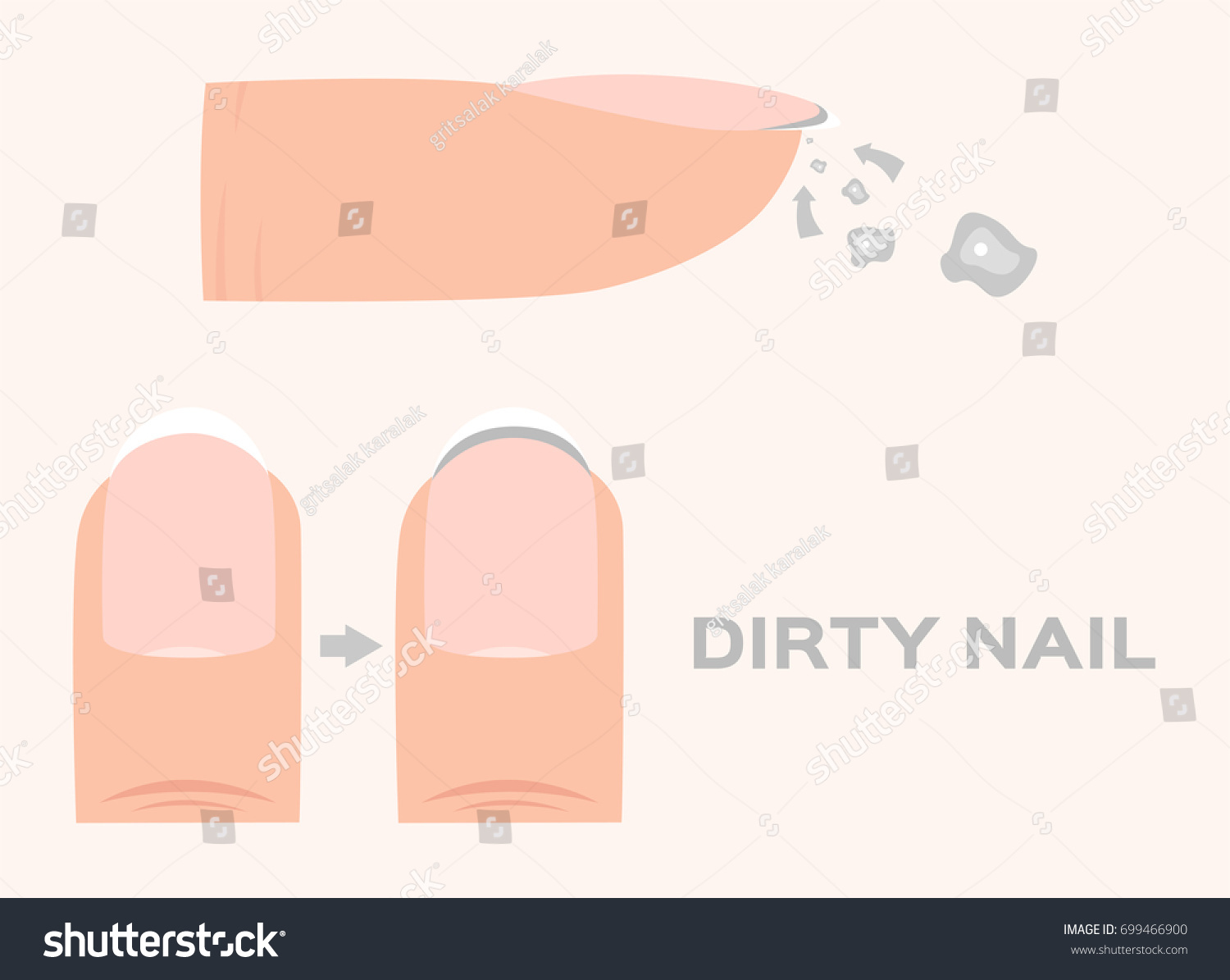 Structure Dirty Finger Nail Human Anatomy Stock Vector Royalty Free