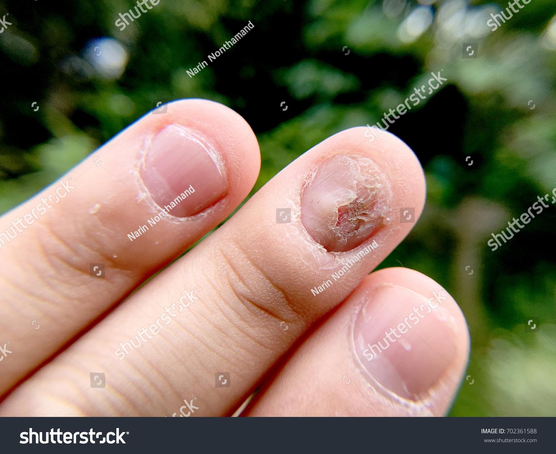 Fungal Nail Infection Damage On Human Stock Photo & Image (Royalty ...