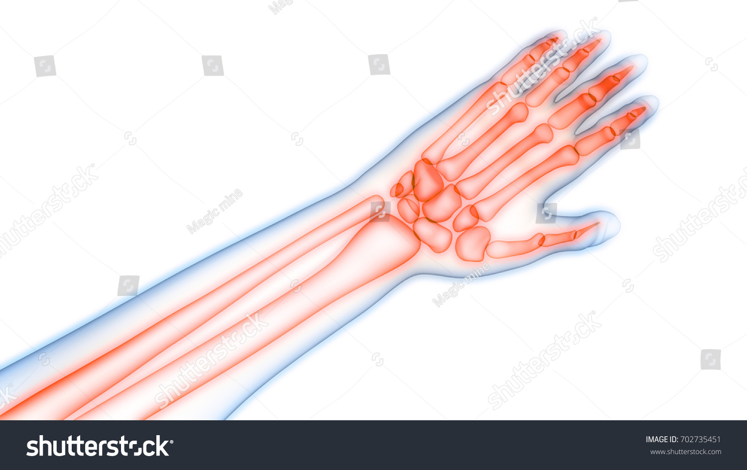 Human Body Bone Joint Pains Anatomy Stock Illustration 702735451 ...