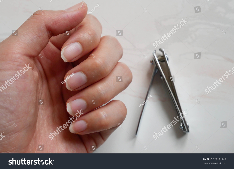 Fingernail Lack Nutrients Blur Nail Clipper Stock Photo (100% Legal ...