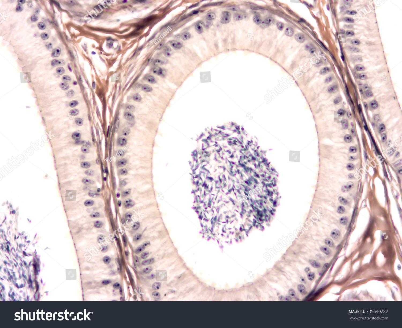 Histology Human Testis Epididymis Tissue Show Stock Photo Edit Now