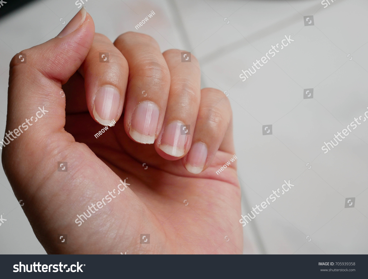 Fingernail Lack Nutrients On White Background Stock Photo (Download ...