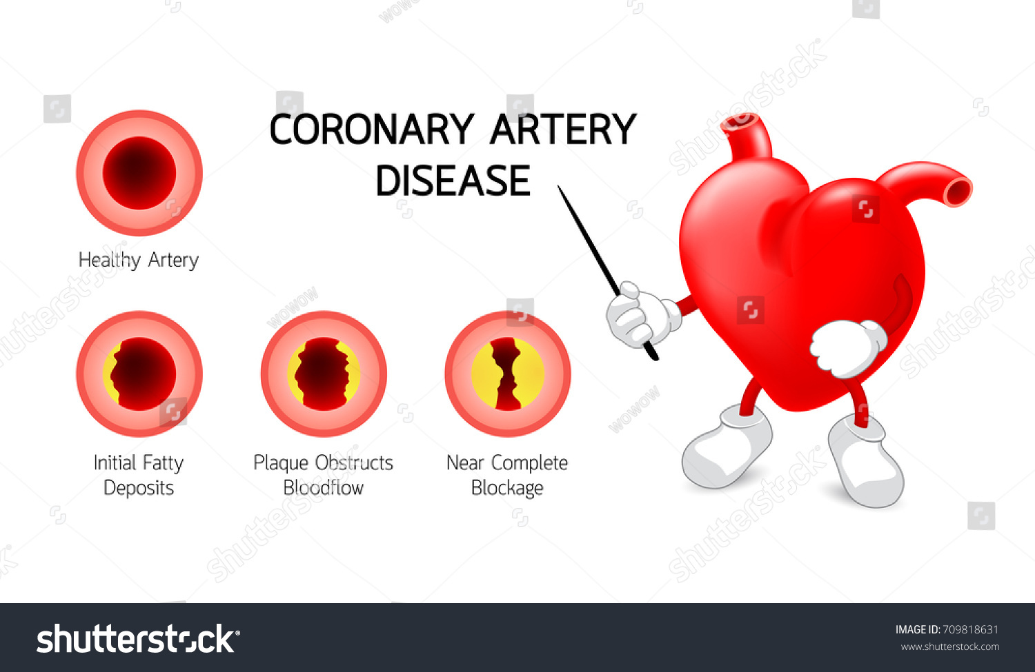 Coronary artery disease diagram free download wiring diagram heart character coronary artery disease info stock vector heart character with coronary artery disease info graphic heart awareness concept atherosclerosis pooptronica Images