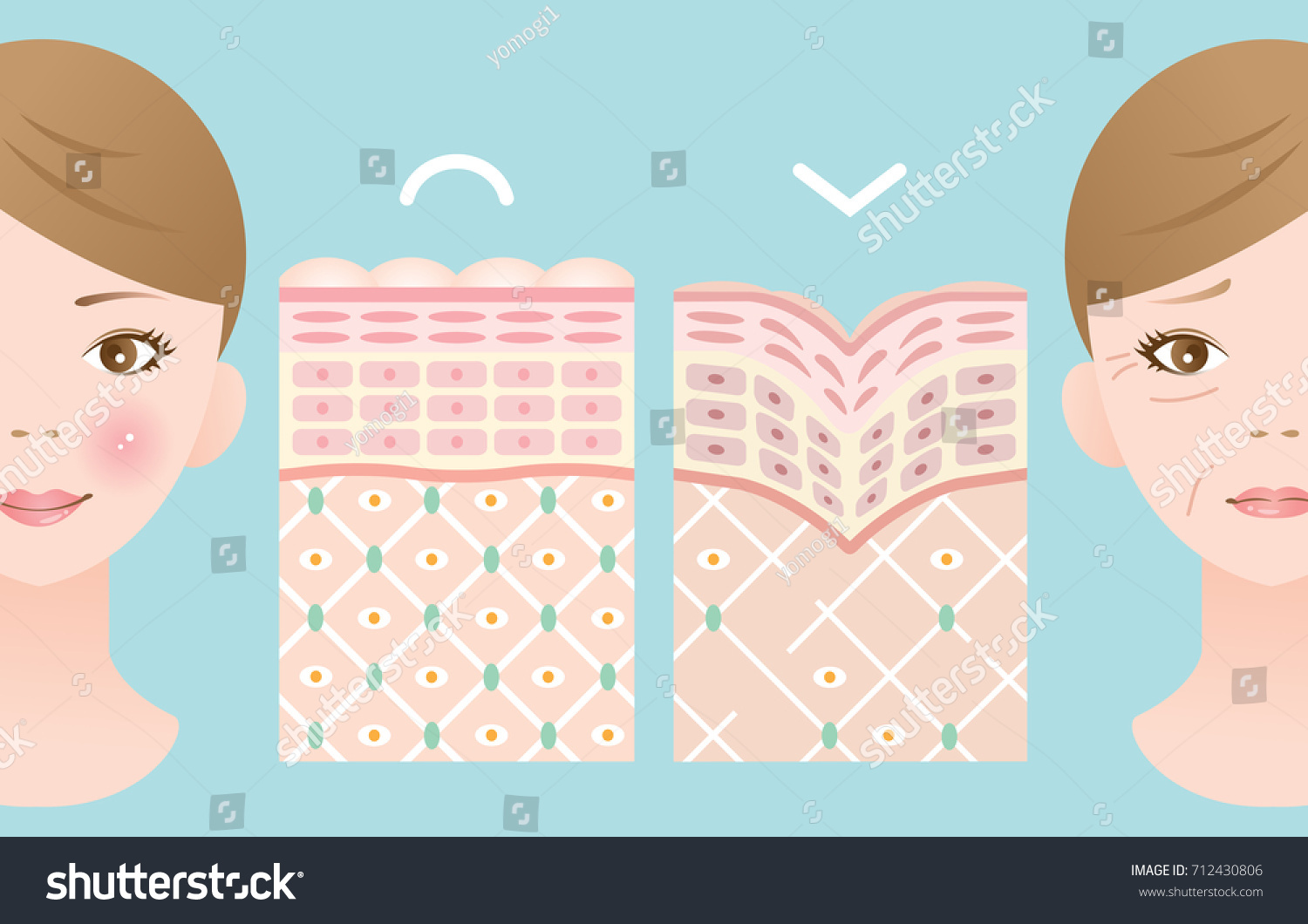 diagram young old skin woman face stock vector (royalty free Epidermis Diagram diagram of young and old skin woman face with winkles and no winkle
