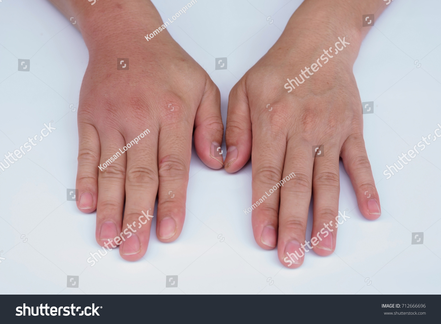 Compared Two Hands See Difference After Stock Photo (Edit Now ...