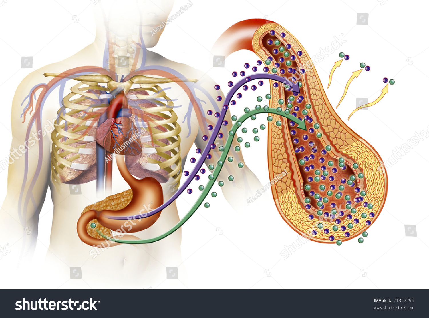Anatomical Illustration Types Diabetes Stock Illustration 71357296 ...
