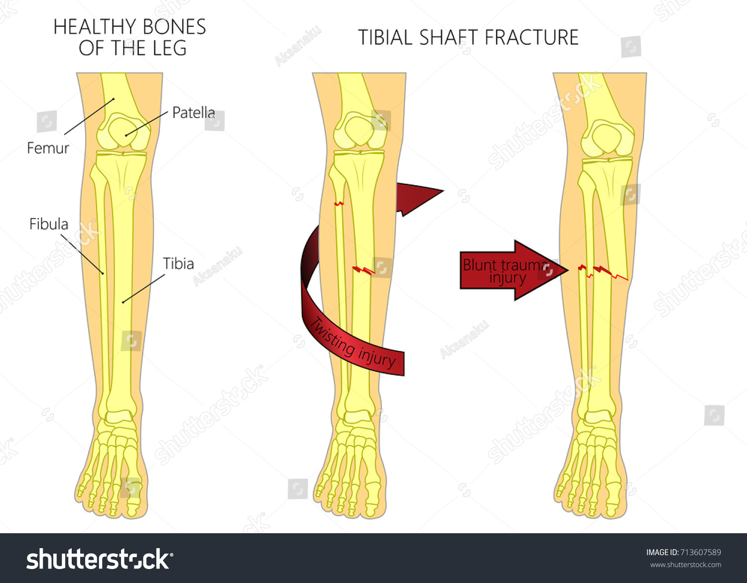 Vector Illustration Healthy Bones Human Leg Stock Vector Royalty