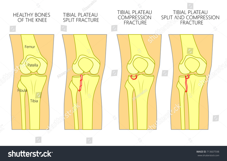 Vector Illustration Healthy Bones Human Knee Stock Vector 713607598 ...