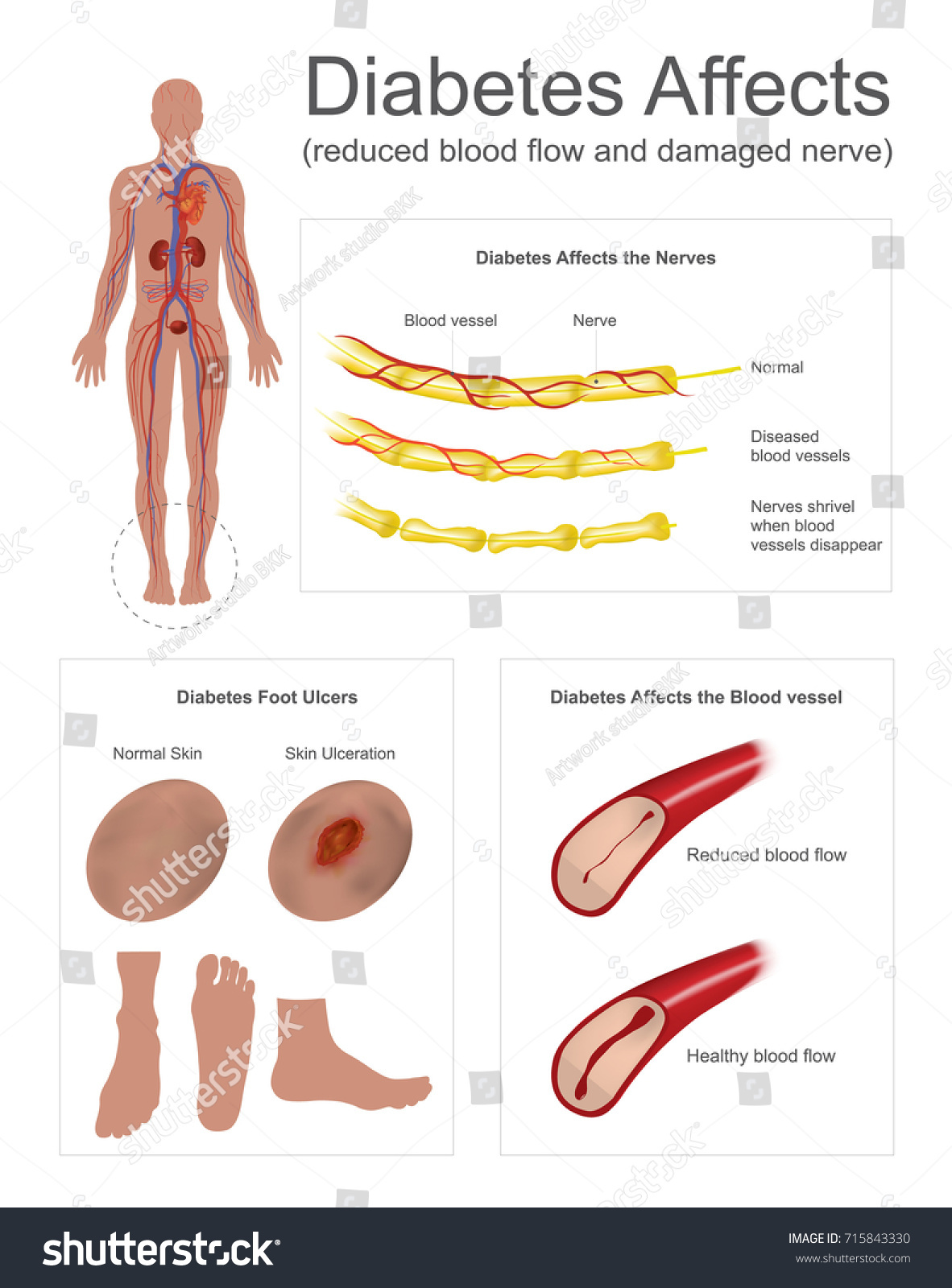 Diabetes Affects Nerves Vessels Nerves Leg Stock Vektorgrafik