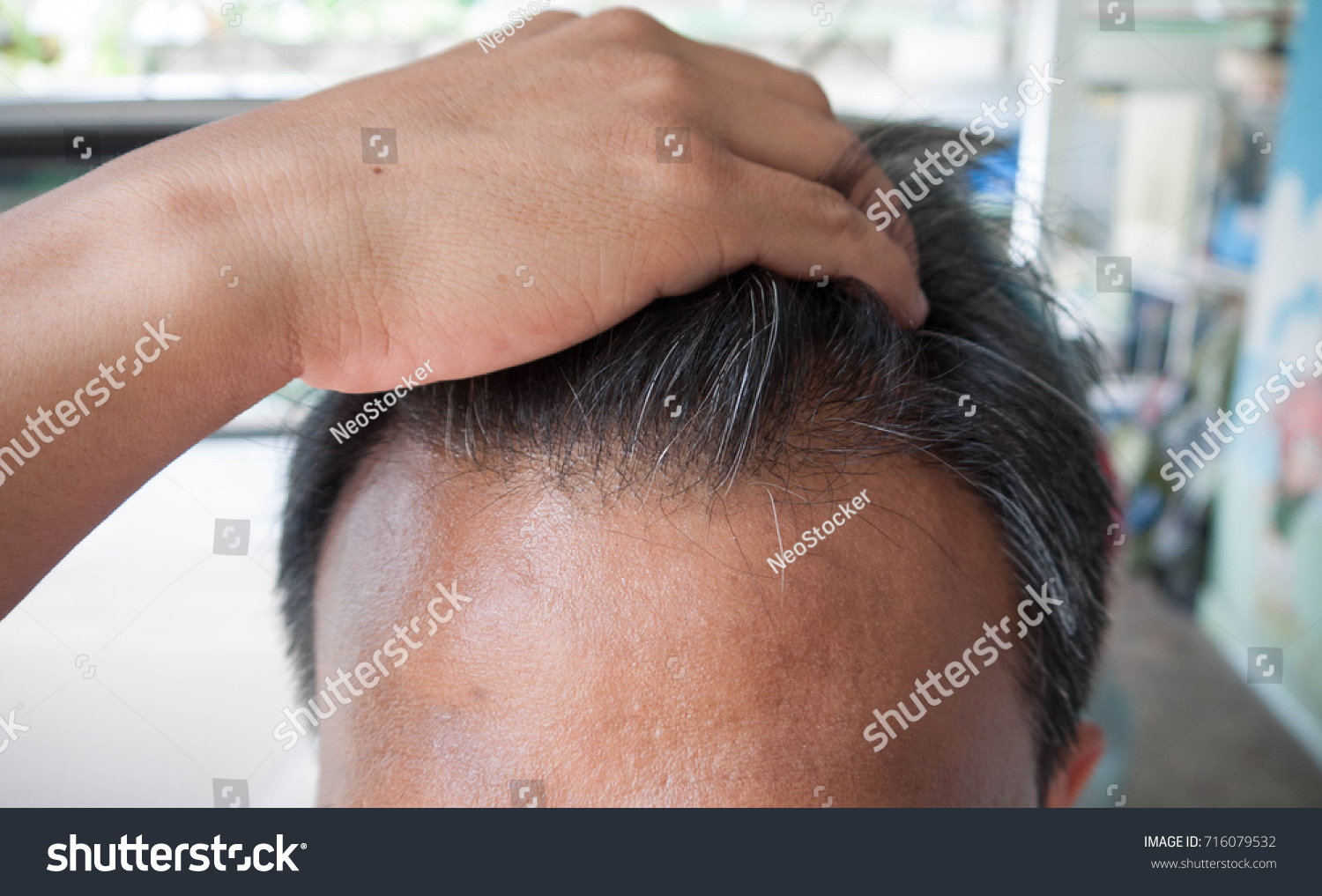 5 Months After Hair Transplant Stock Photo Royalty Free 716079532