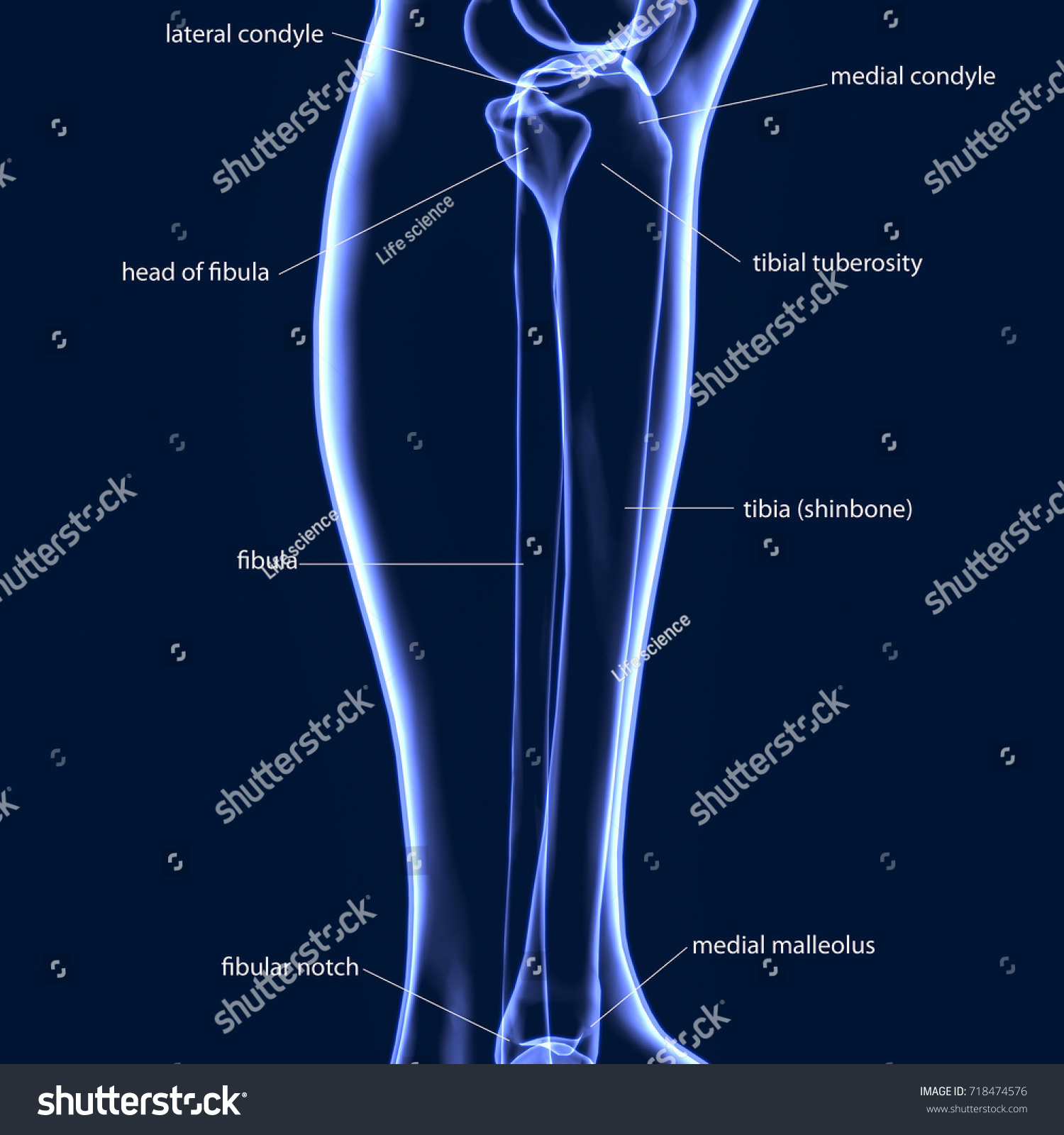 3 D Illustration Human Body Fibula Tibia Stockillustration 718474576 ...
