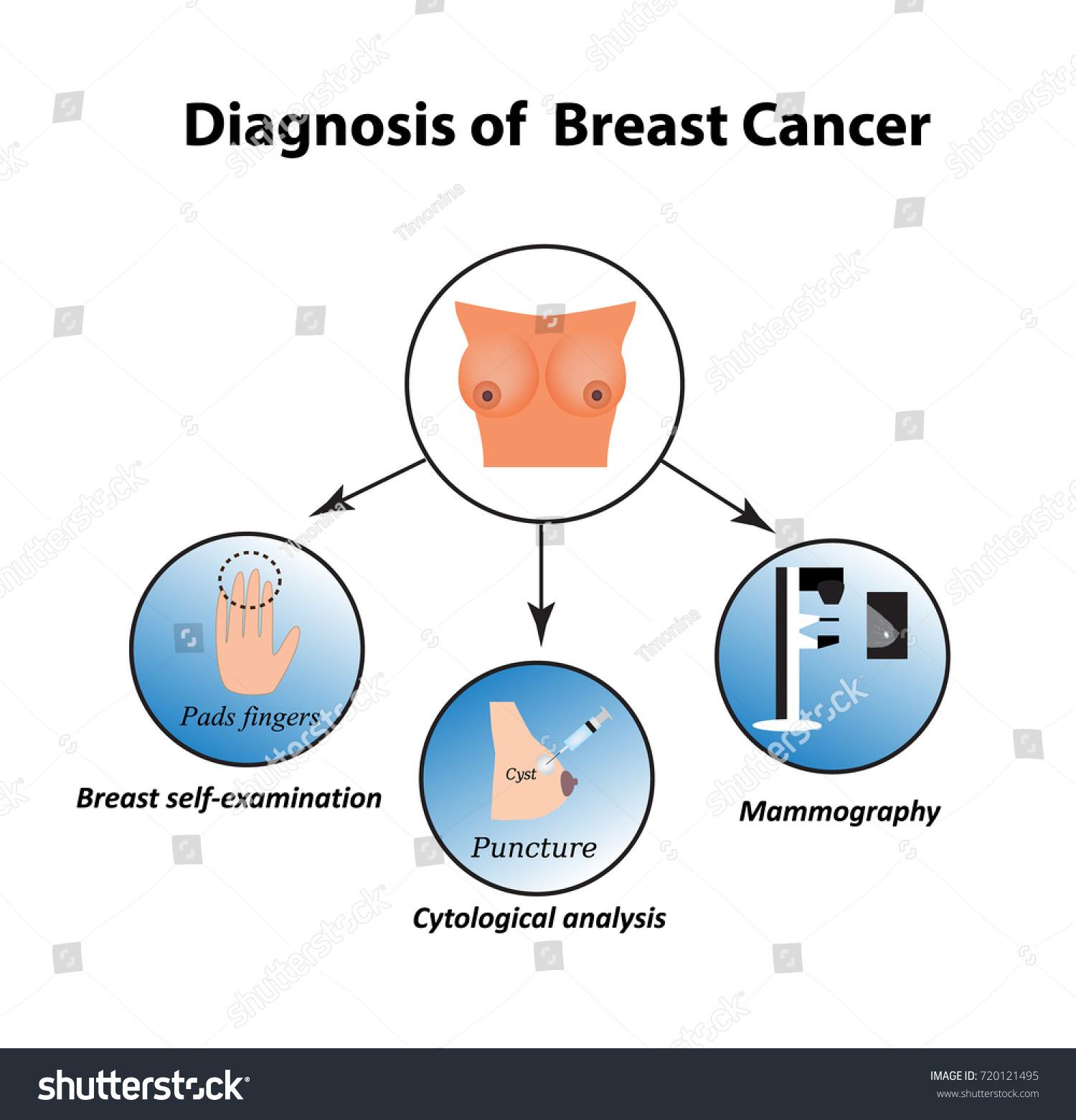 Diagnostic procedures cancer breast