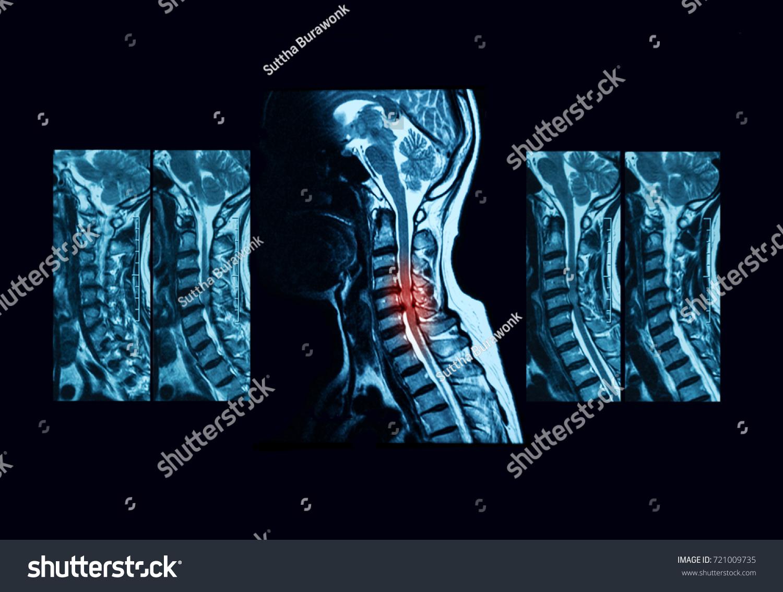 Magnetic Resonance Imaging MRI Scan Cervical Stockfoto (Lizenzfrei ...