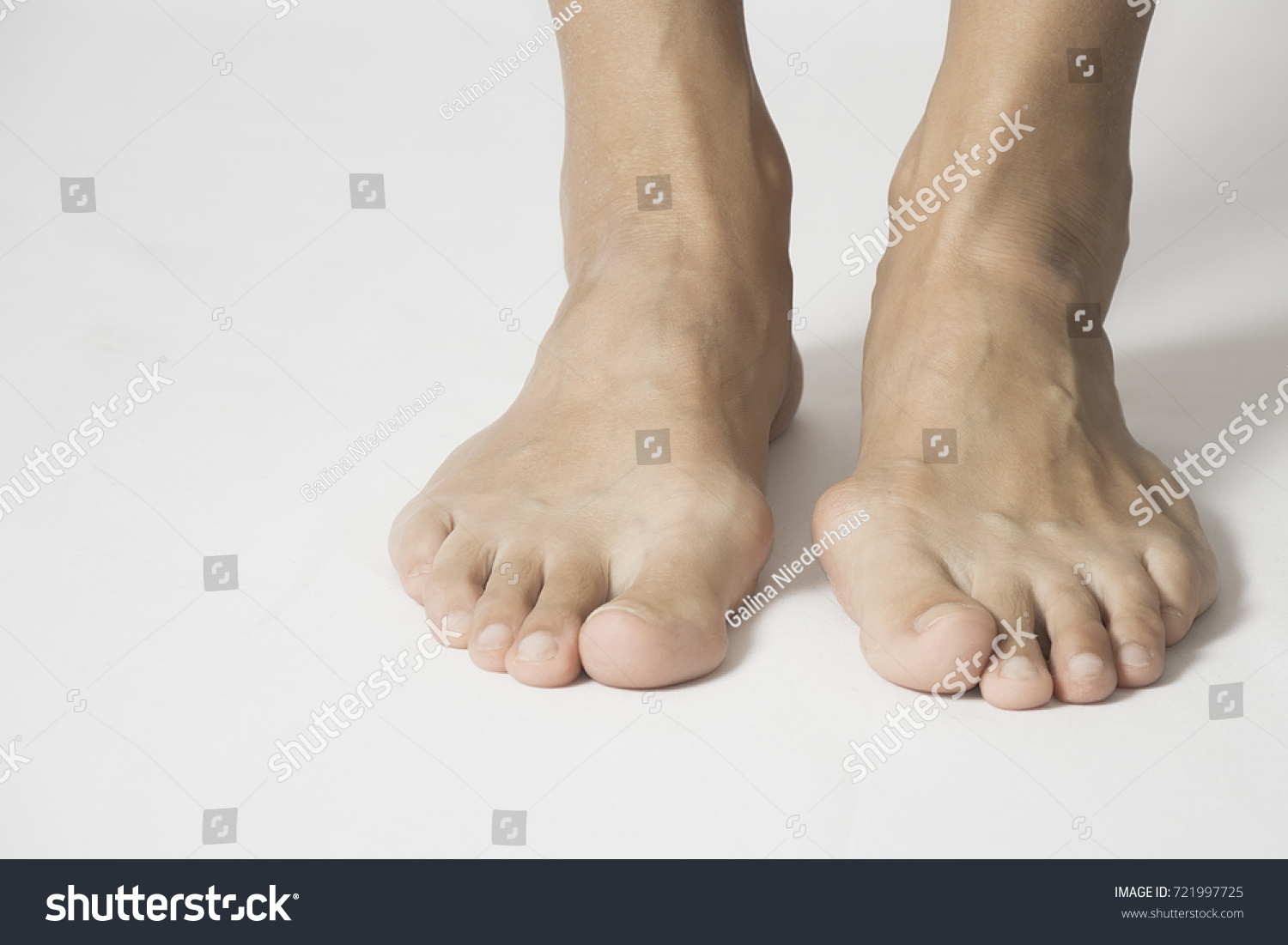 Hallux Valgus Bunion Foot On White Stock Photo (Royalty Free ...