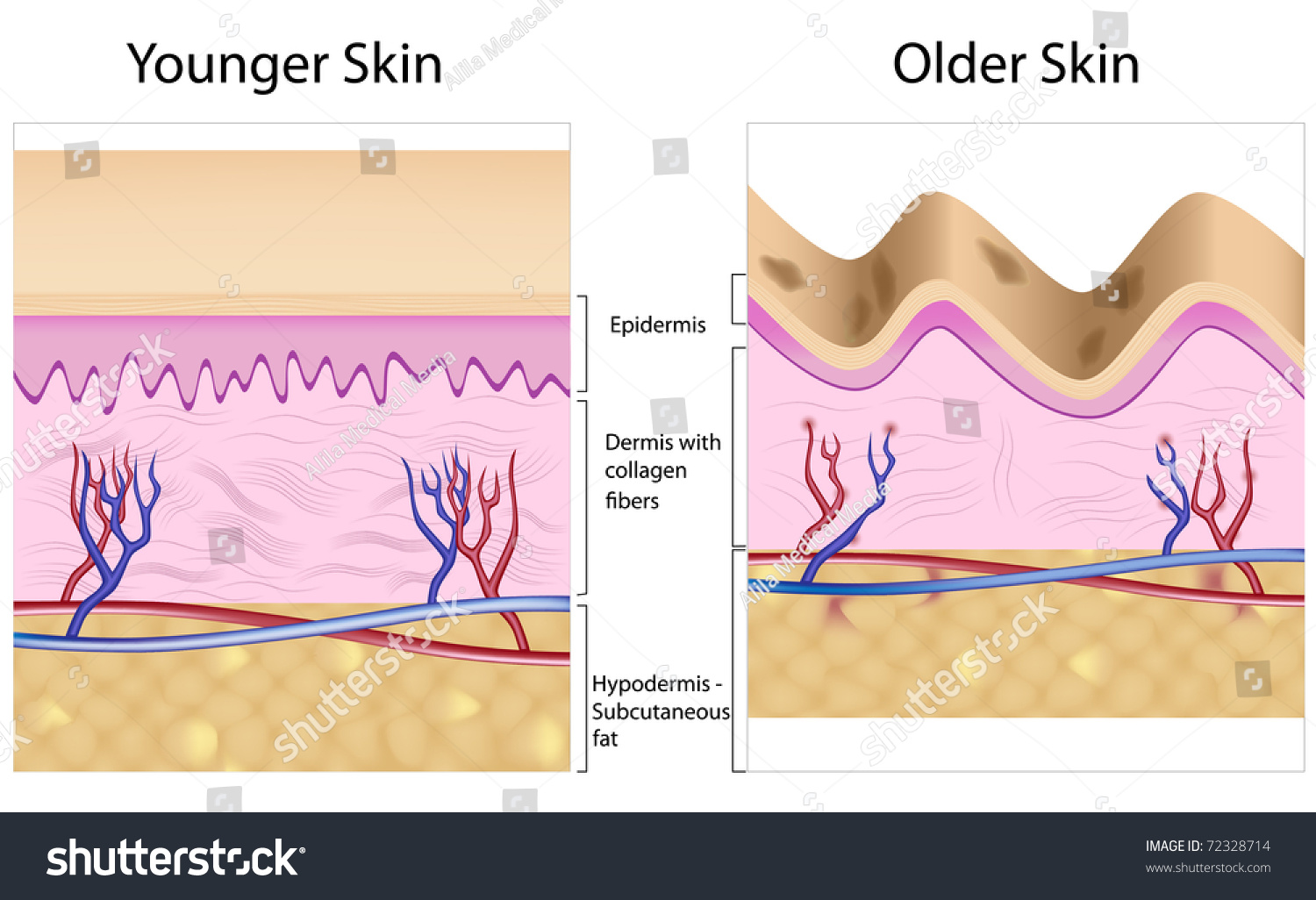 Old Skin Anatomy Characterized By Presence Stock Illustration ...