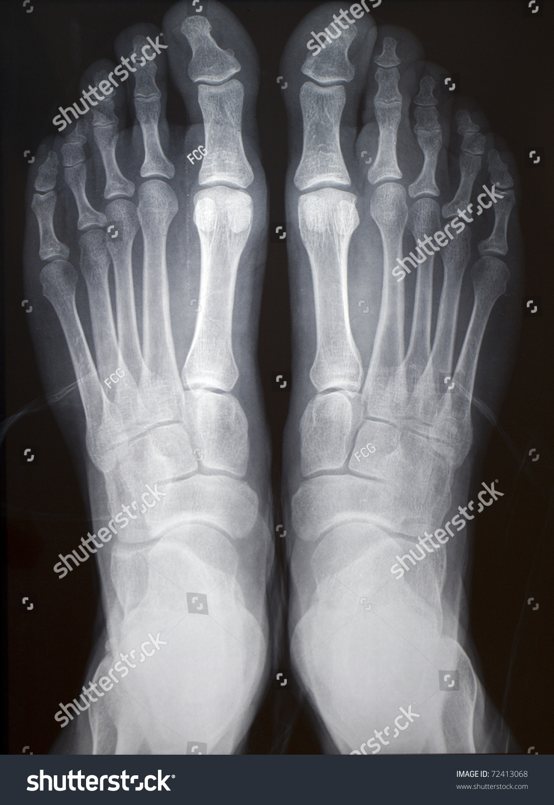 Human Right Left Foot Ankle Xray Stock Photo (Edit Now) 72413068 ...