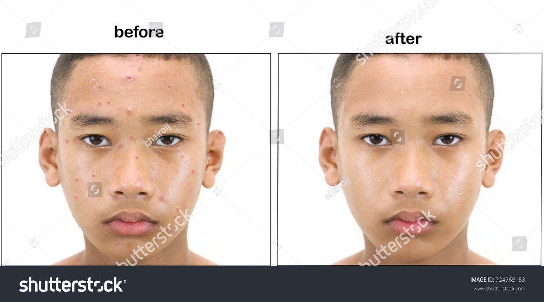 adolesent plastic surgery