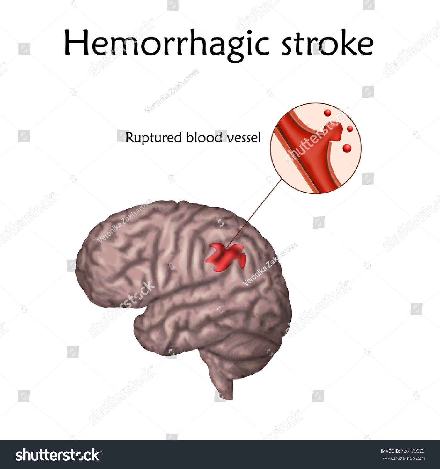 Hemorrhagic Stroke Poster Banner Vector Medical Stock Vector ...
