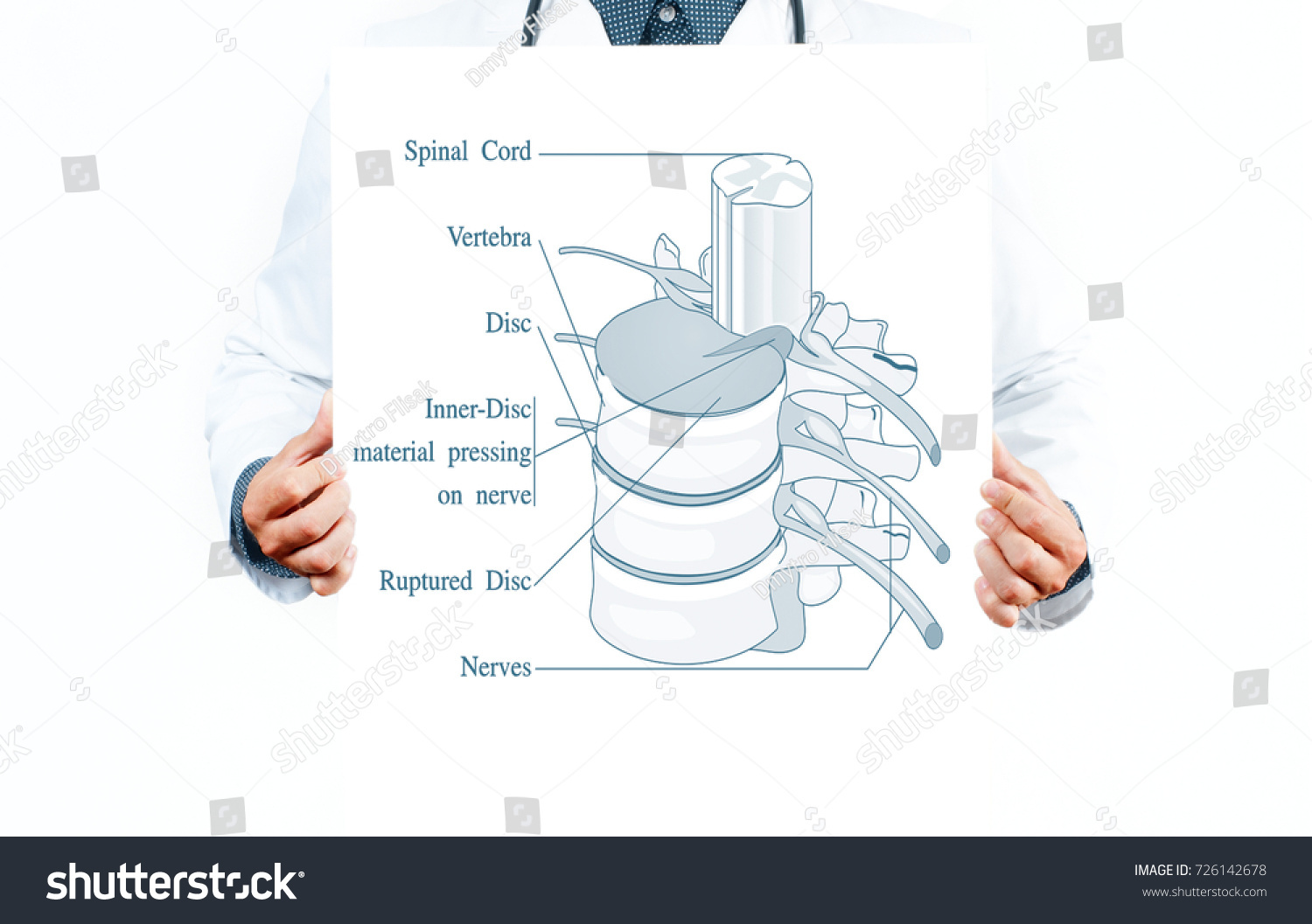 Medicine Anatomy Doctor Anatomical Spine Facet Stock Photo (Royalty ...