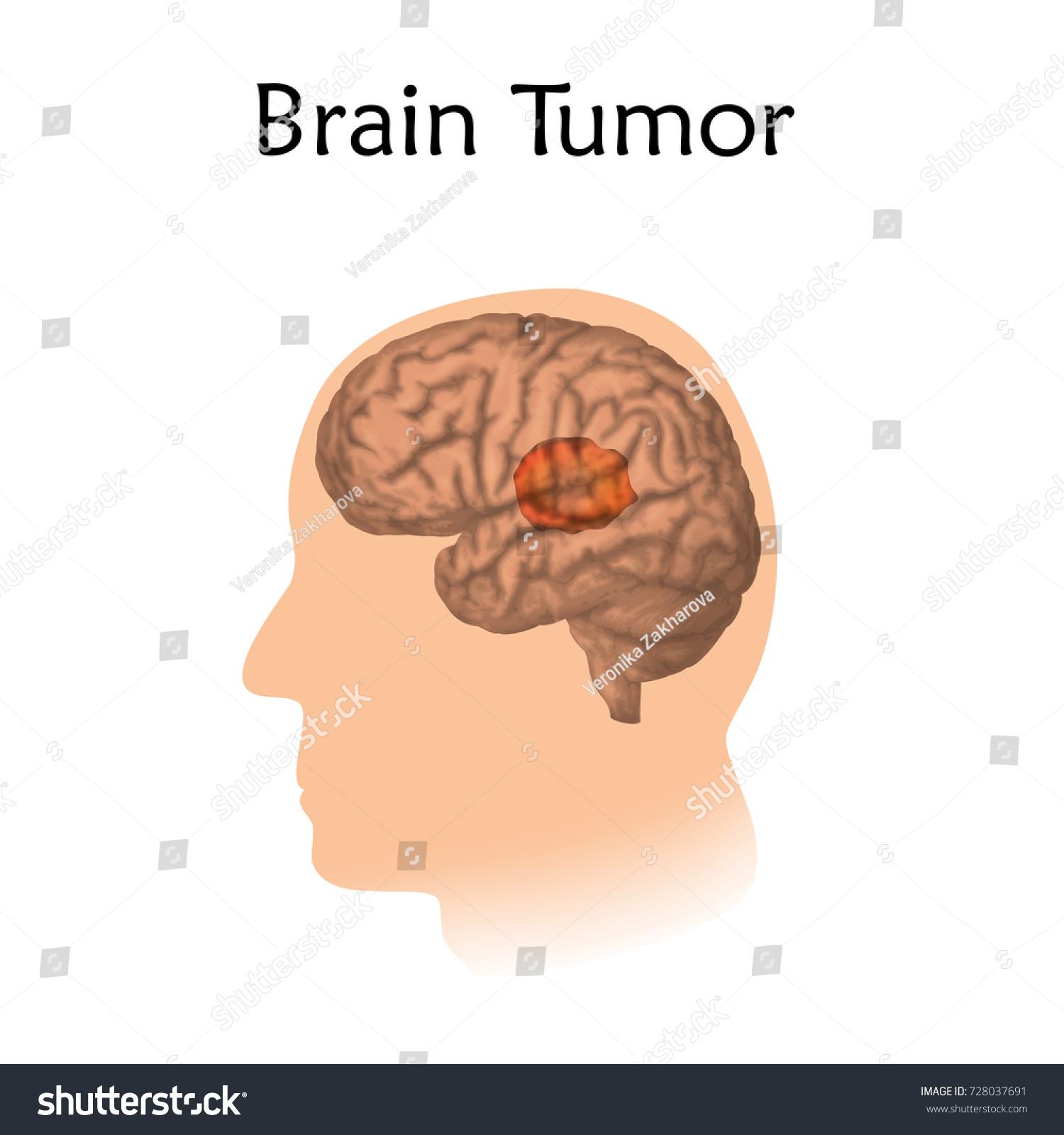 Brain Tumors Cancer Vector Medical Illustration Stock Vector ...