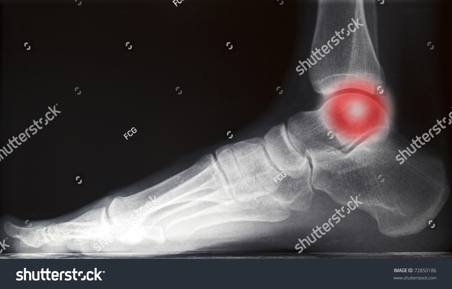 Painful Human Right Foot Ankle Xray Stock Photo Safe To Use