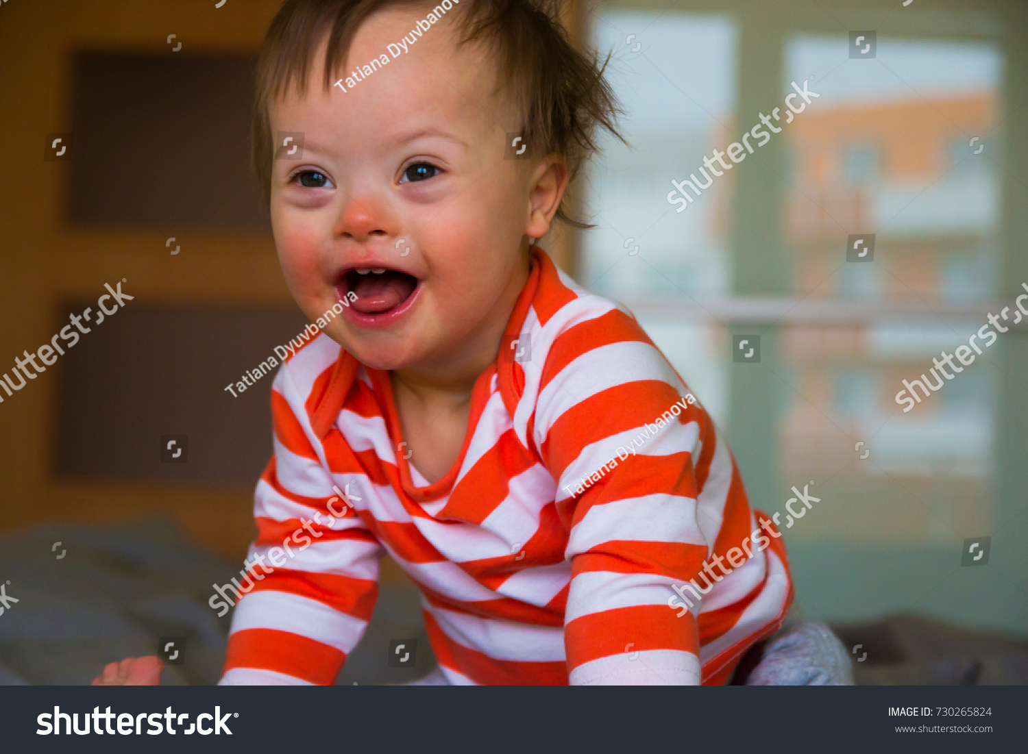 Portrait of cute baby boy with Down syndrome on the bed in home bedroom #730265824