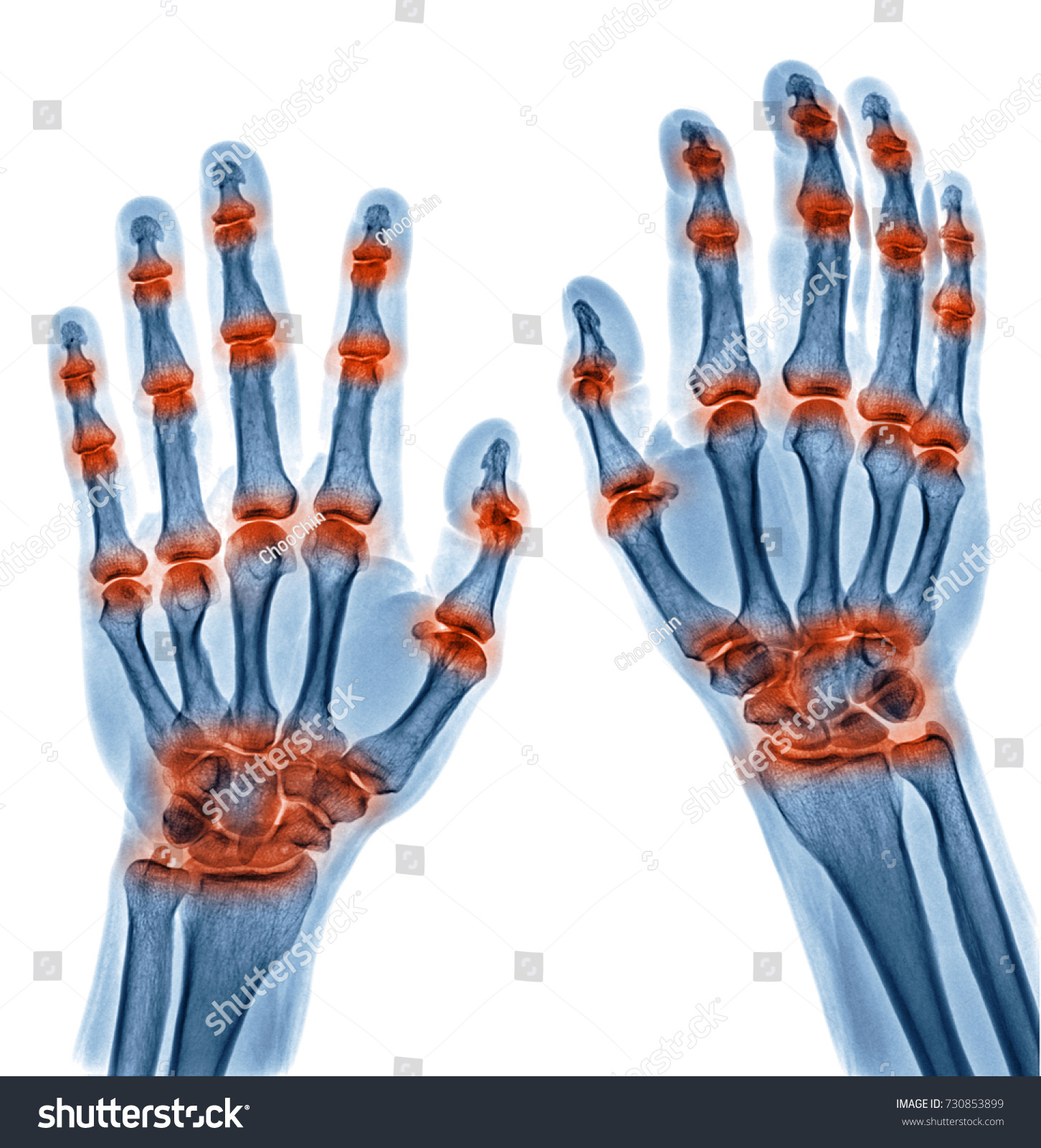 X Ray Image Multible Joint Inflammation Stock Photo (Safe to Use ...