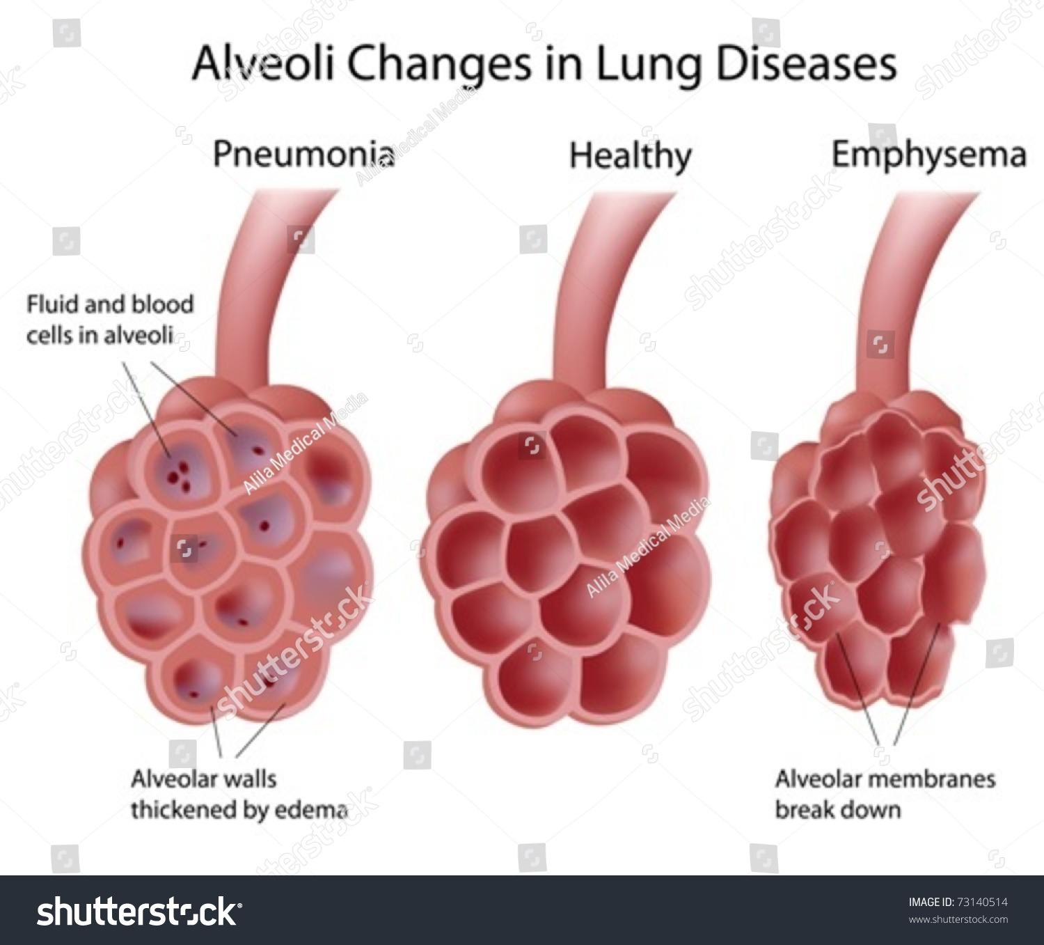 lung and alveoli The primary function of the respiratory system is to exchange oxygen and carbon dioxide inhaled oxygen enters the lungs and reaches the alveoli the layers of cells.