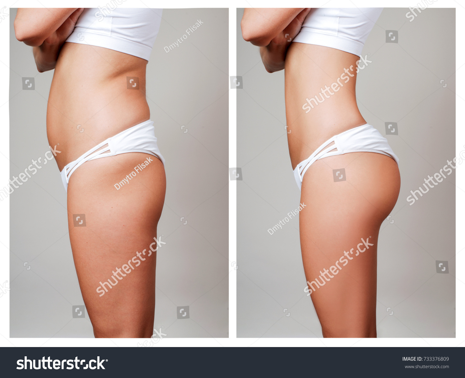 Female Body Before After Liposuction Plastic Beauty Fashion Stock Image 733376809