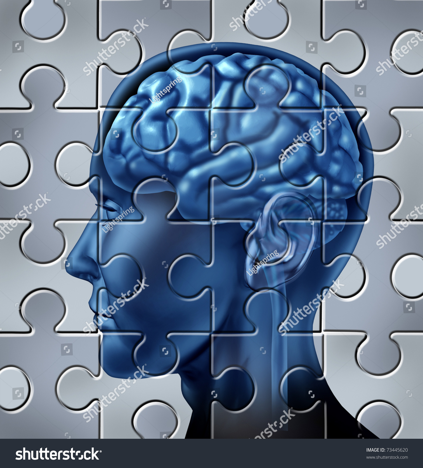 multiple intelligence and memory loss Memory loss may range from normal multiple sclerosis and normal alternative therapies for memory / cognitive.