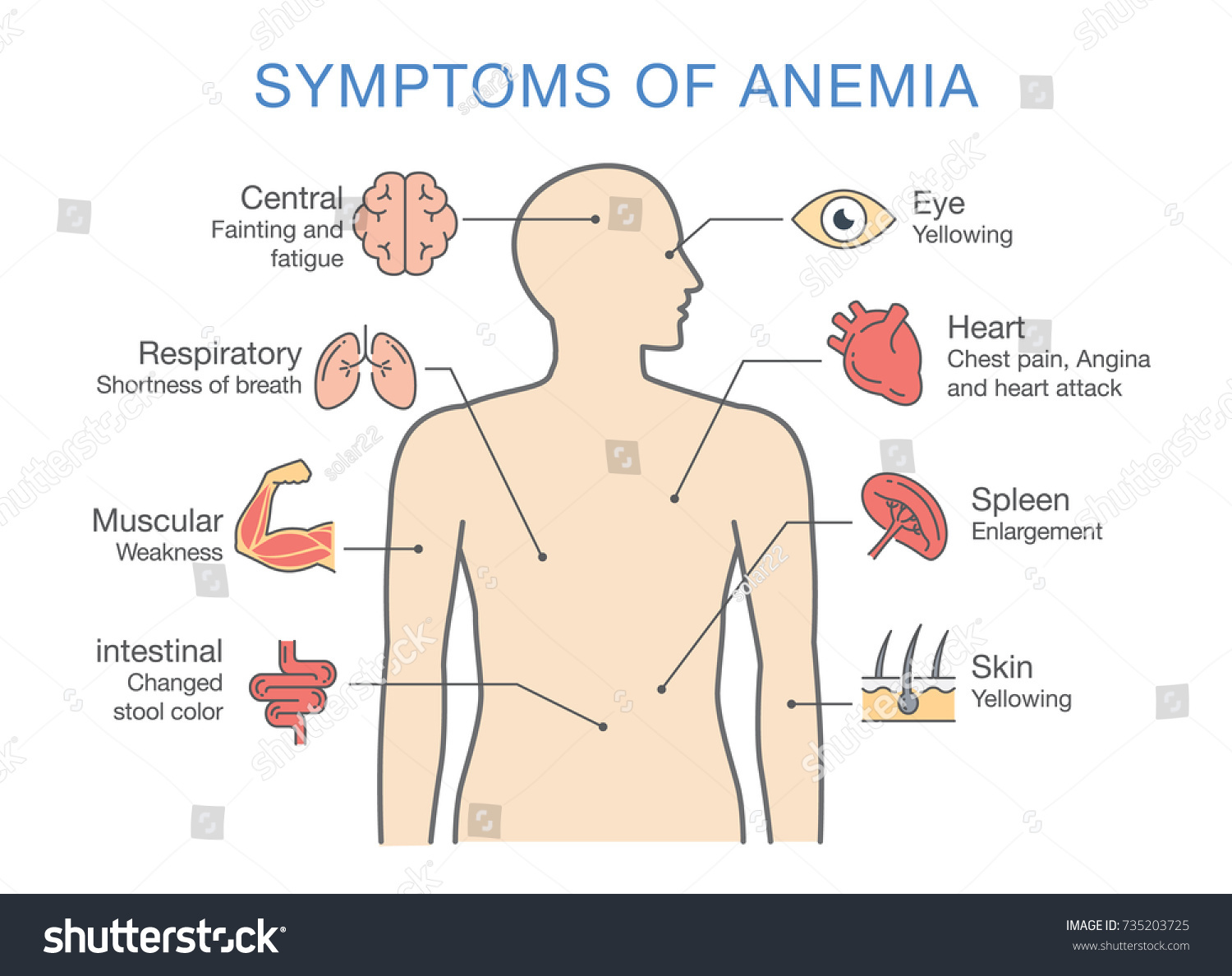 Symptoms Common Many Types Anemia Illustration Stock